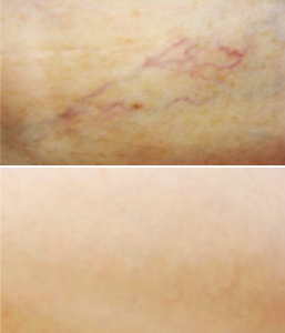 Vein Removal Before / After