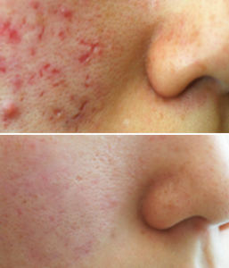 Acne Treatment Before / After