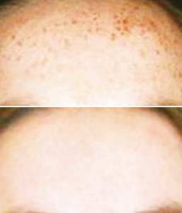 Hyperpigmentation Treatment Before / After